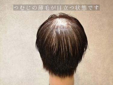 頭頂部の薄毛を簡単にカバーできるスタイリング方法とは?
